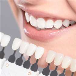 Global Cosmetic Dentistry Market Outlook 2019-2024: Danaher Corporation, Institut Straumann, Dentsply International